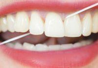 passar-fio-dental-0816-1400x800-3