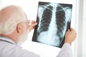 Análise da radiografia do tórax