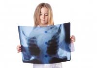 Criança analisando radiogragia
